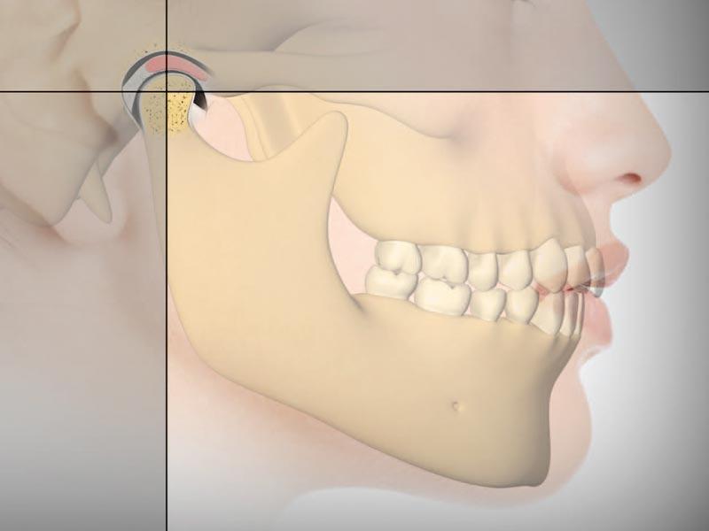 TMJ Dysfunction – symptom visual index. Screening for SDB or TMJ/D.